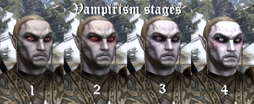 Skyrim Vampirism Stages